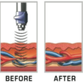 Acoustic Wave Therapy with the effects on arteries and veins.